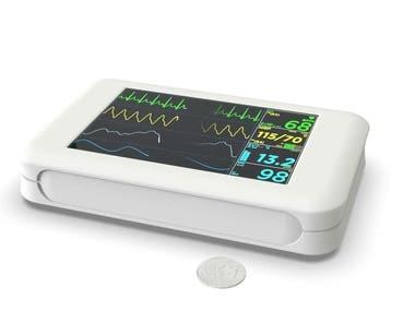 Portable EKG