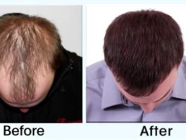 The Best Hair Loss Treatment for Men   We Grow Hair Blog