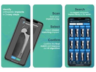 Implant Identifier