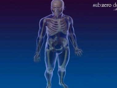Congestive Heart Failure  3D Medical Explanation Animation