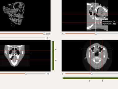 DICOM 3D Viewer