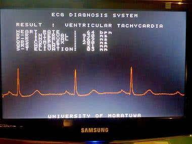 Emababed ECG Processsor