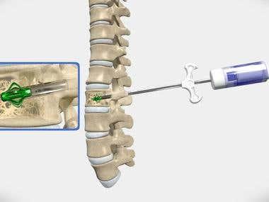 Medical Animation - EVA Operation