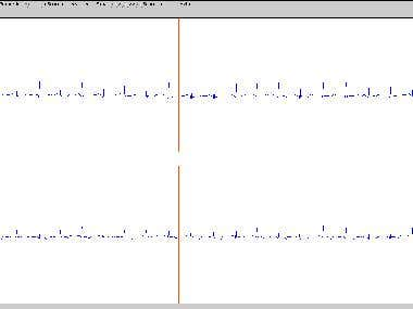 bio signal
