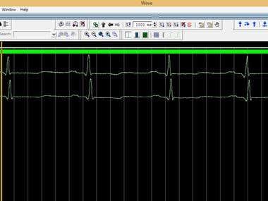 ECG Denoising Filter