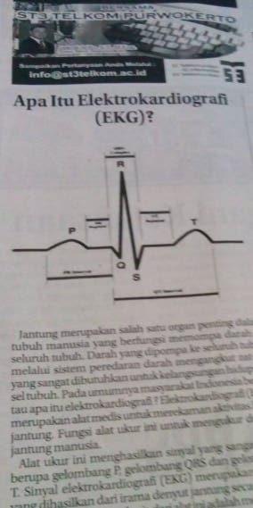 Apa itu elektrokardiografi (EKG)