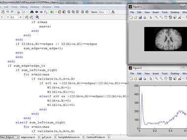 medical image processing in matlab