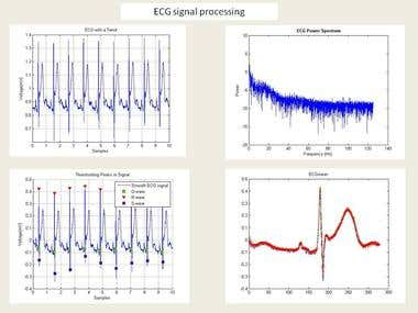 ECG signal processing Matlab software