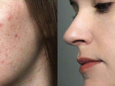 Acne removal+ general retouching