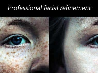Professional facial refinement
