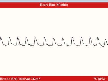 IR and Arduino based low cost Heart Rate Monitor