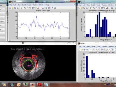 Vessel Lumen recognition on TVC/IVUS DICOM images