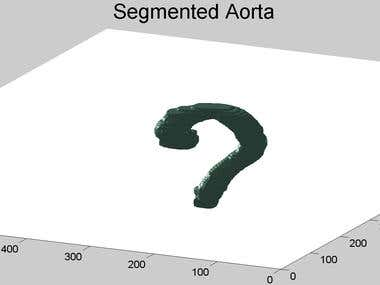 Automated Aorta Segmentation in 3D abdominal CT scans