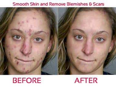 Acne removal,skin retouch