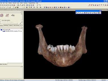 MEDICAL BONES 3D PRINTING SCANNING REVERSE ENGINEERING