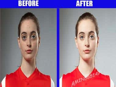 Acne removal,Skin retouch/make professional profile pic