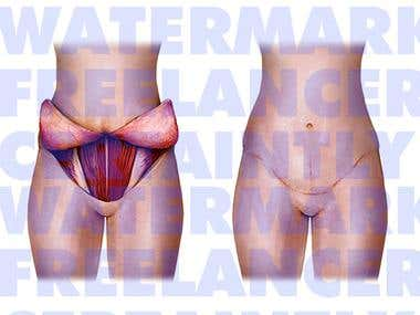 Medical Illustration - Abdominoplasty