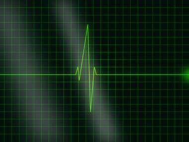 Electrocardiogram (ECG) development