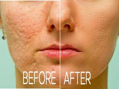 Remove Blemishes, Wrinkles and Photo Edite