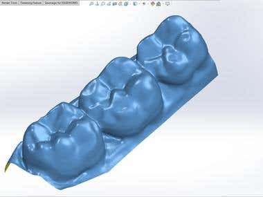 Scan to solid CAD model