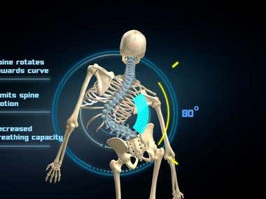 Scoliosis Animation Video