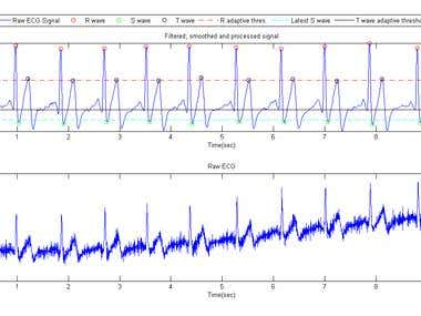 QRS detection and R-R interval