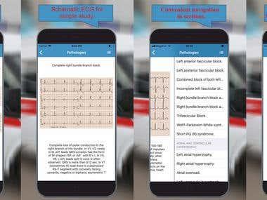 [iOS] ECG: Interpritation and Tests.