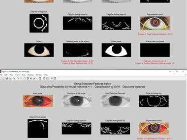 Glaucoma detection using Image processing & Machine learning