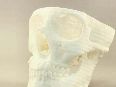 Skulls. Surgery. 3D-print.
