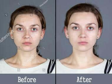 Spot Removing & skin Retuching