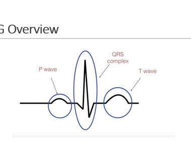 Heart Arrhythmia Classification using ECG Signal