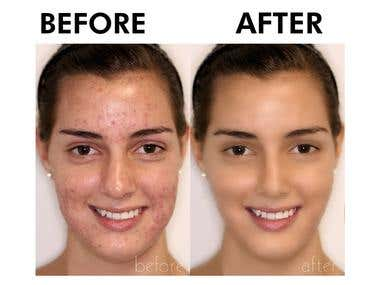 Photo Retouch & Wrinkle Remove