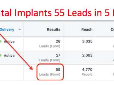 Local Dentist – 55 leads for Dental Implants in 5 Days