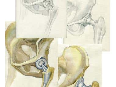 Medical Drawings