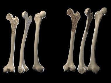 Human bones with ostheoporosis medical illustration