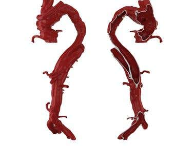 3d printable aorta for medical purposes