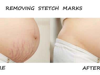 Removing stretch marks