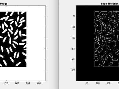 Digital Image Processing Algorithms