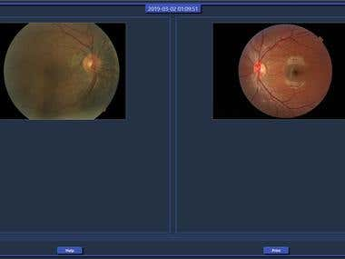 Eye disease recognition Using CNN
