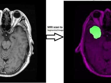 Brain Tumor Segmentation and Tumor Type Classifier