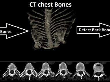 Detect Region of Vertebral bone using CT scan of chest