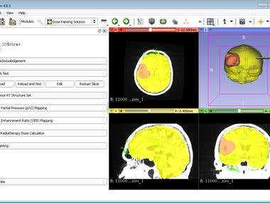 3D Slicer MRI Image Analysis Project