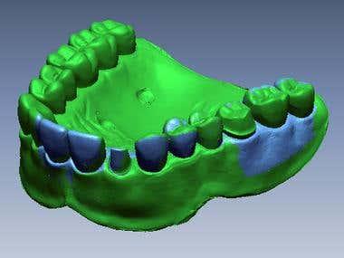 Dental application in engineering