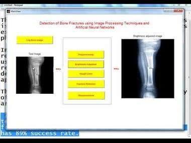 Region Of Interest(ROI) Detection in Medical Imaging