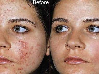 Retouching Skin
