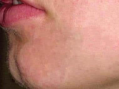 spot remove