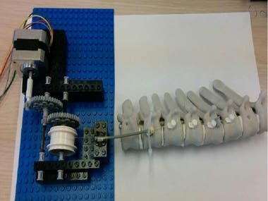 Electronic Design for Novel Scoliosis Treatment