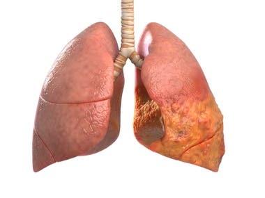 3D lung disease