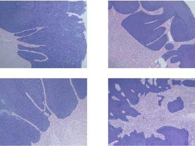 Epithelium Segmentation