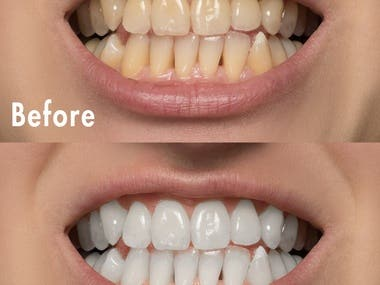 Whitening the Teeth